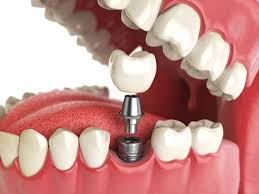 Prosthodontics: types, features and materials of dentures