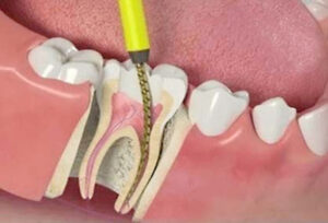 Stages of tooth root canal treatment