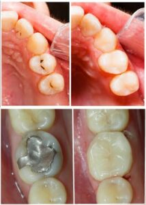 TYPES OF TOOTH DECAY AND PECULIARITIES OF ITS TREATMENT